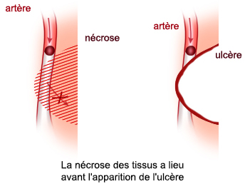 nécrose des tissus