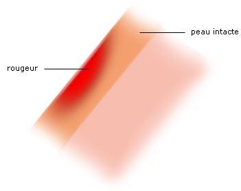 Br lure thermiques chimiques par le soleil par le - Peau qui brule comme un coup de soleil ...