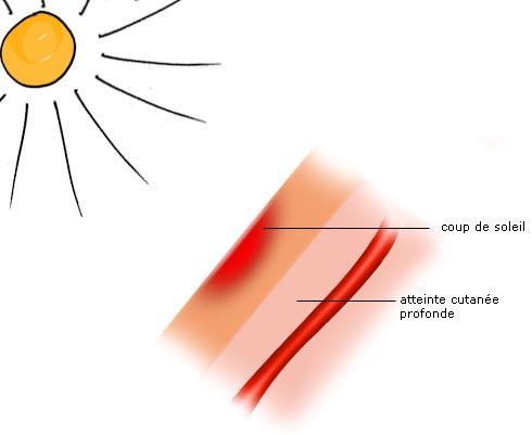 Br lure thermiques chimiques par le soleil par le - Coup de soleil sur le visage que faire ...