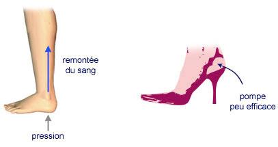 chaussures pour éviter la varice