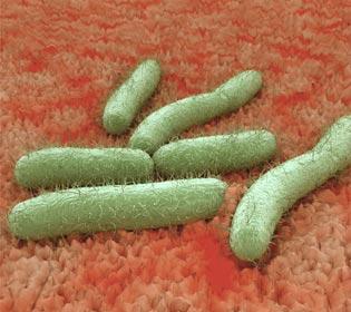 Vaginose bactérienne