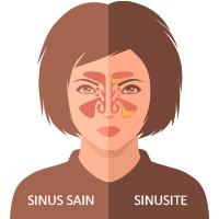 sinus sain ou sinusite
