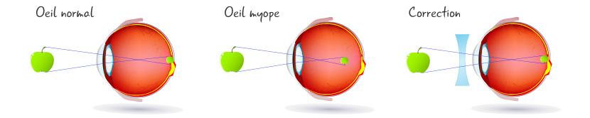 Myopie Définition de la myopie Mesures Causes Correction Exercices 9f4989ff1562