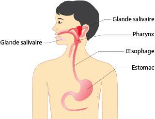 Reflux gastrique oesophagien du nourrisson