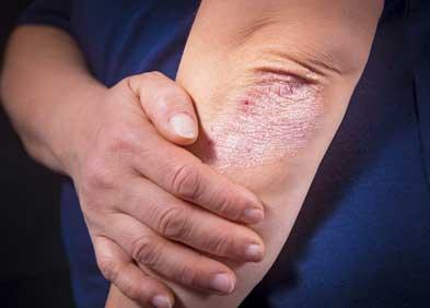 Le psoriasis chez les enfants à genoux