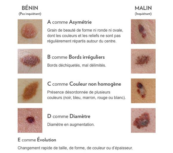 Règles ABCDE dépistage cancer peau