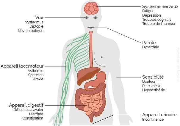 symptômes sclérose en plaque
