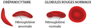 anémie : globules rouges