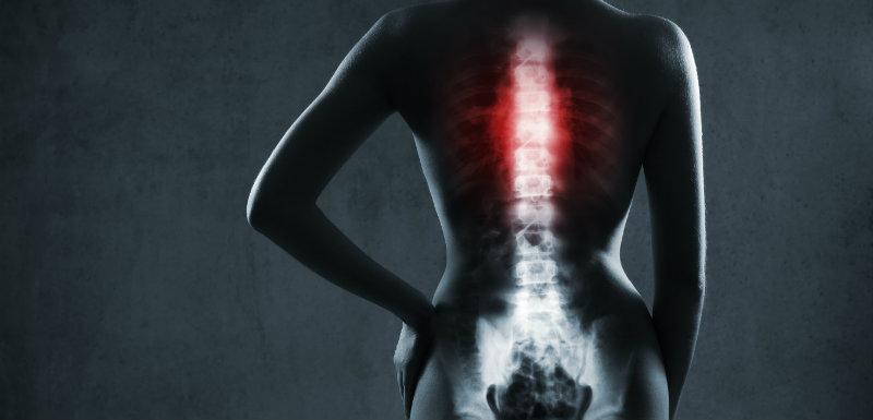 bioverre régénérer os