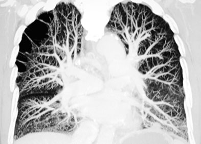 Artères pulmonaires