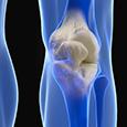 Maladies du système ostéo-articulaire