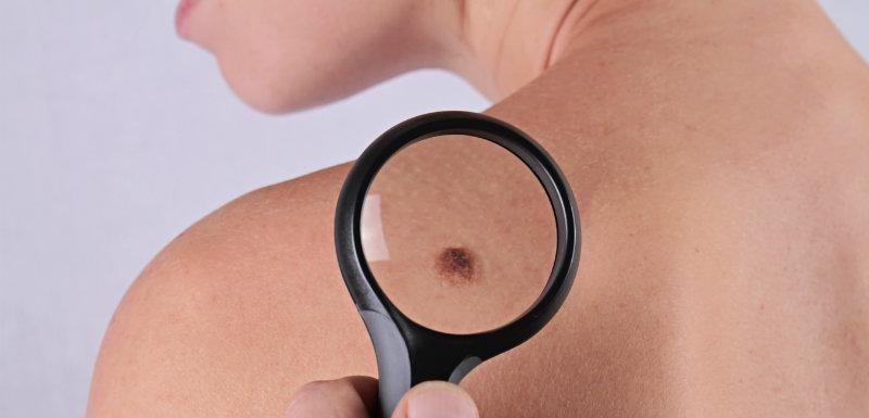 Mélanome cancer peau et médicament