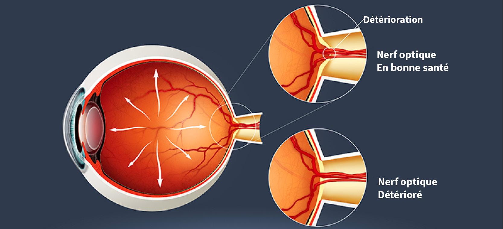 Schéma du glaucome