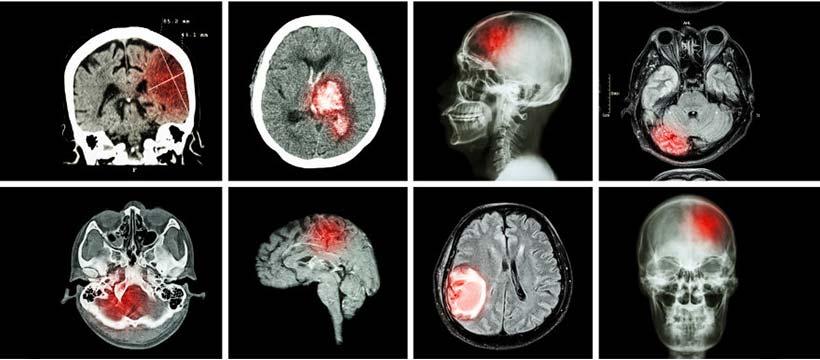 Un nouvel espoir pour les tumeurs cérébrales inopérables