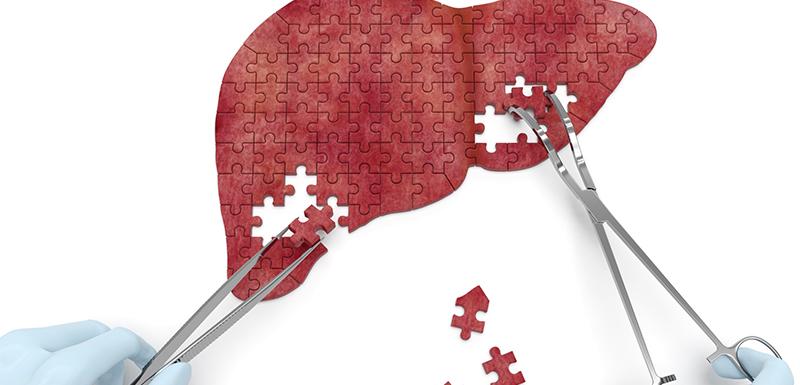 Cancer du foie : miser sur la prévention pour optimiser la survie