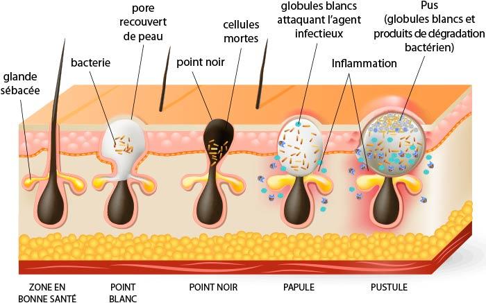 schéma boutons d'acné