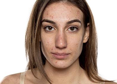 jeune femme souffrant d'acné