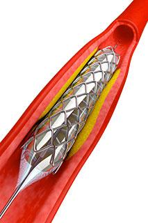 angioplastie
