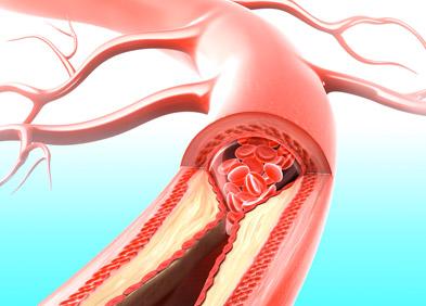 Artère saturée en corps gras