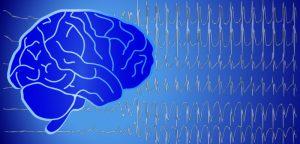 Une pétition contre les idées reçues sur l'épilepsie