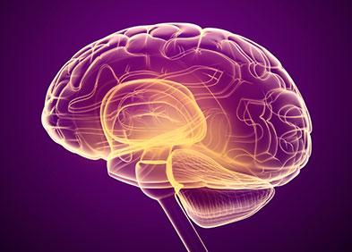 Radiographie du cerveau pour diagnostiquer un AVC