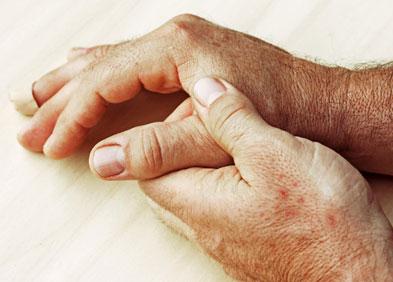 mains présentant des signes de rhumatisme psoriasique