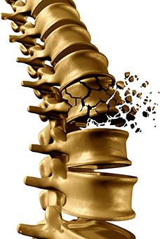 Rupture de la colonne vertébrale