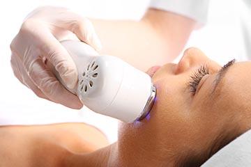 acné : traitement laser