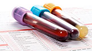 test sanguin