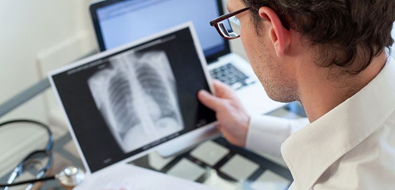 tuberculose frappe encore
