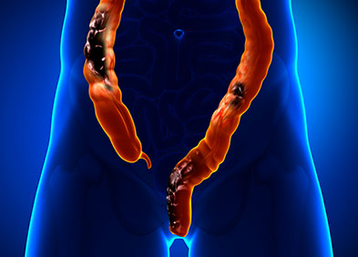 Cancer colorectal : symptômes, diagnostic, traitements