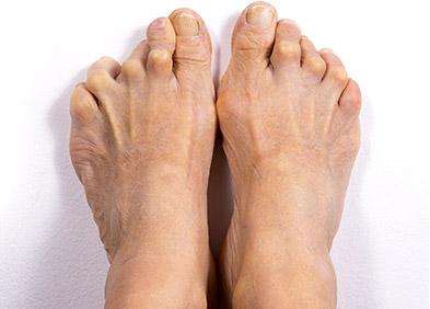 polyarthrite rhumatoïde au niveau des pieds