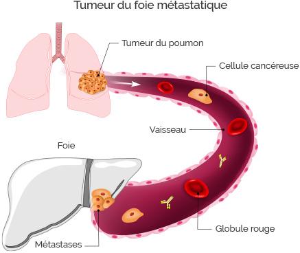 cancers foie métastatiques