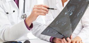 Sclérose en Plaques : un nouvel outil de diagnostic