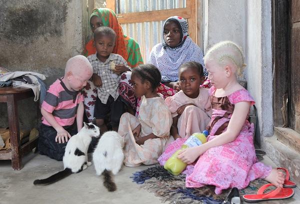 albinisme afrique