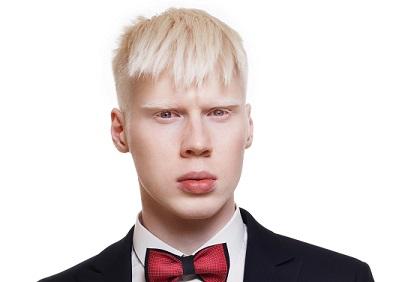 Jeune homme albinos