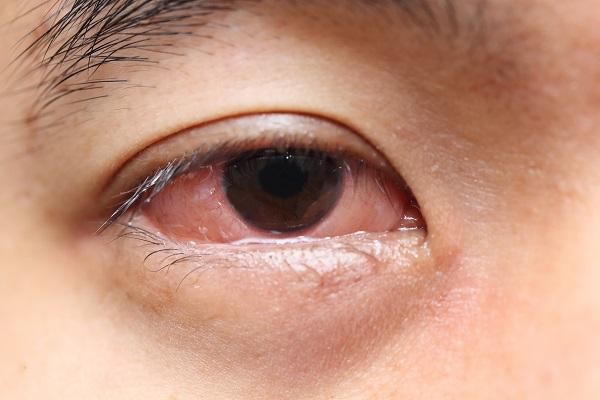conjonctivite symptomes