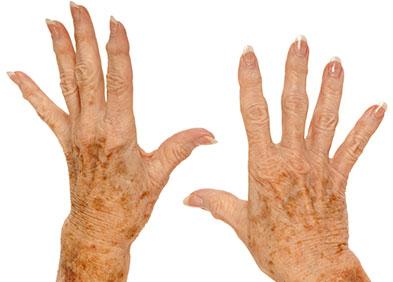 mains femme âgée