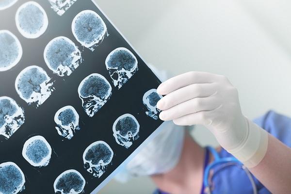 Bilan radiologique
