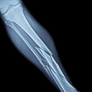 Fractures - Maladie des os de verre