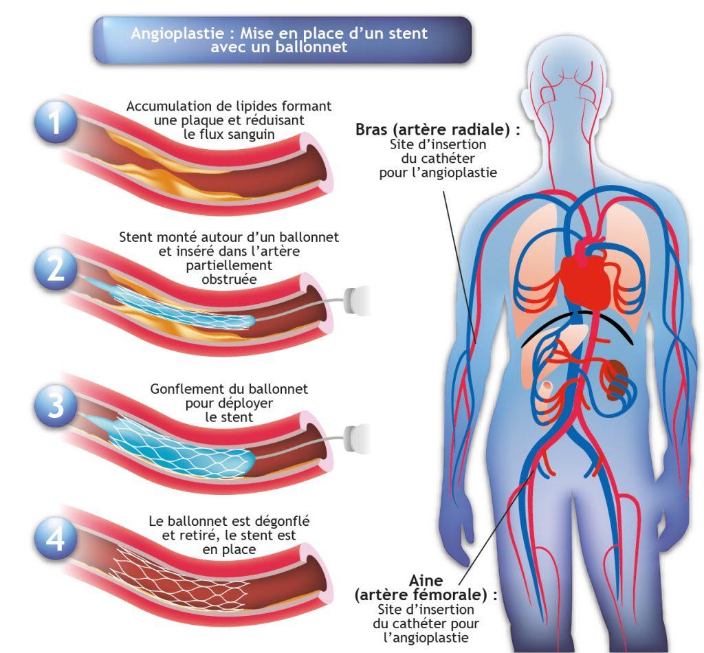 Schéma explicatif de l'angioplastie