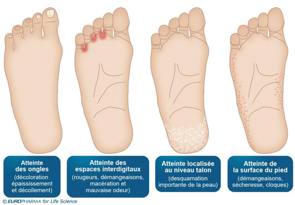 mycose des doigts de pieds