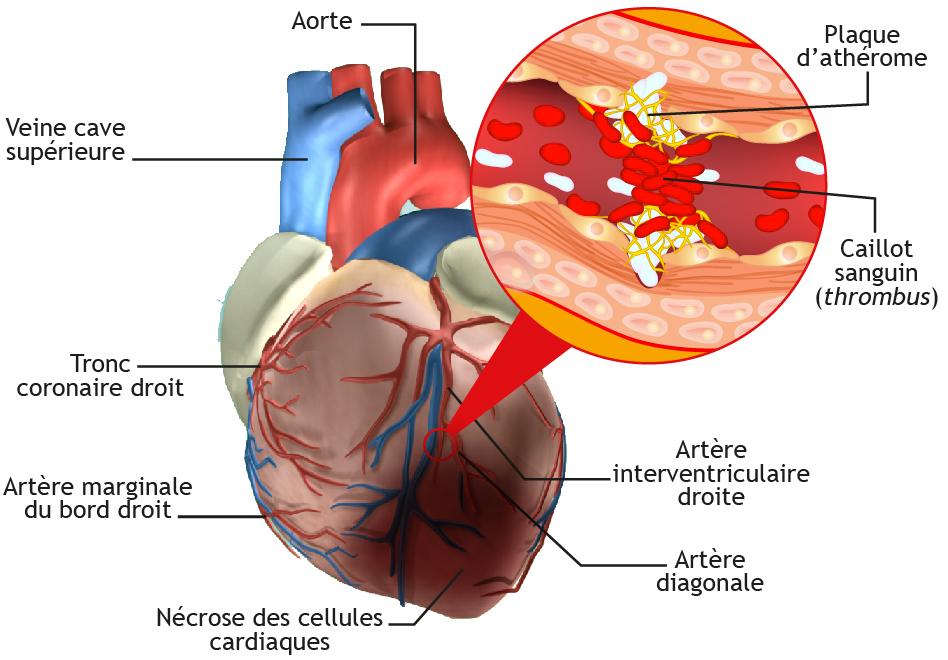 Formation du caillot sanguin