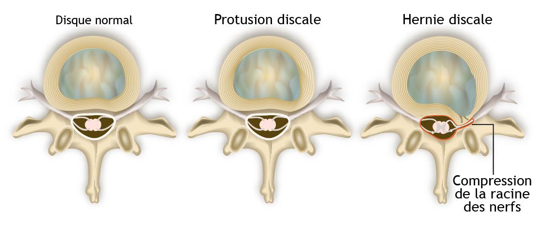Progression de l'installation de la hernie discale