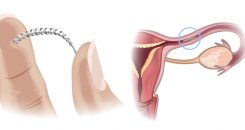 Les implants Essure suspendus !