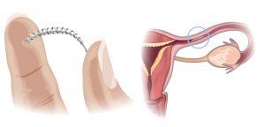 Les implants Essure suspendus !