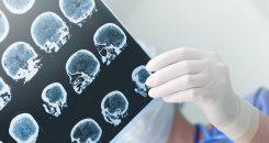 Vers une meilleure prise en charge de l'Infarctus cérébral