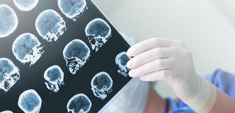 infarctus cérébral-meilleure prise en charge