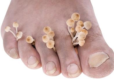 pied avec champignon