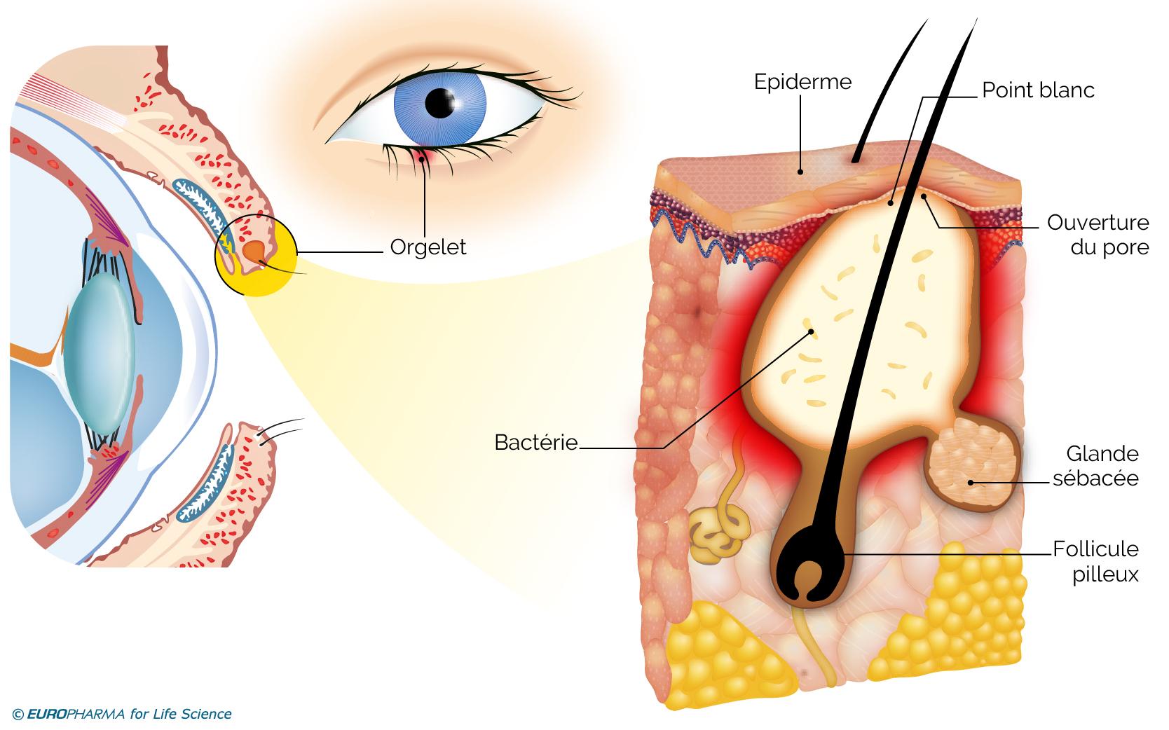 Atteinte du follicule pilo-sébacé dans la maladie de l'orgelet